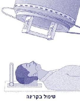 סרטן הגרון טיפול בקרינה
