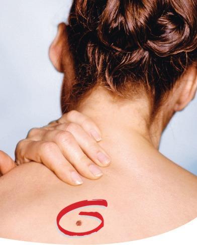 אבחון מוקדם סרטן העור