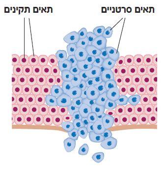 תאים סרטניים