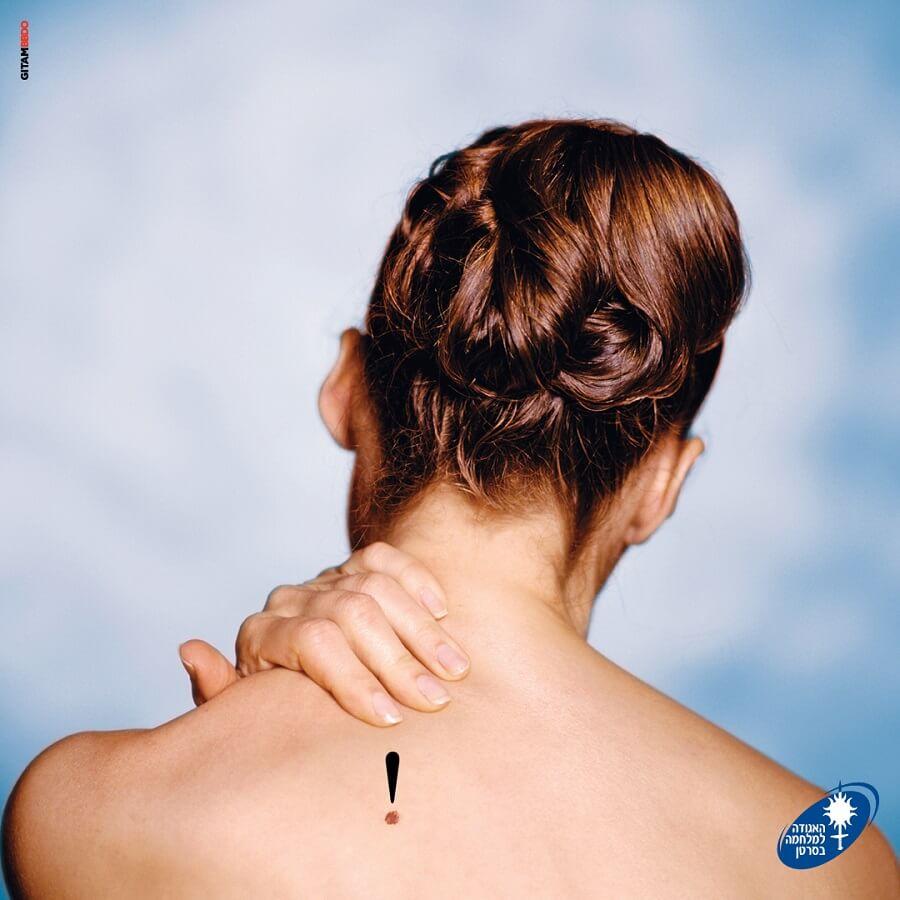 גב של בחורה עם נקודת חן